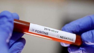 """صورة دراسة حديثة تكشف عن أصحاب فصيلة الدم الأكثر عرضة للإصابة بـ """"فيروس كورونا"""""""